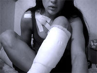 Pole dance - травмы